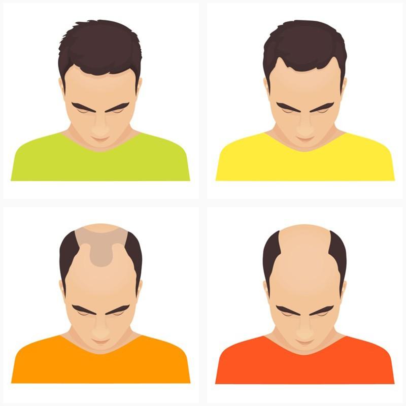 Met een haartransplantatie maken we haaruitval ongedaan