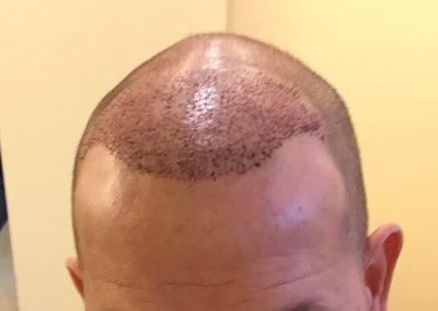 Direct na de behandeling bij Haarkliniek de Kroon