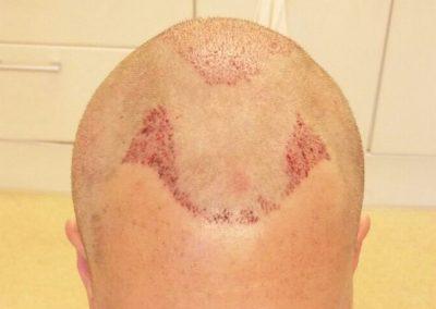 Na de haartransplantatie