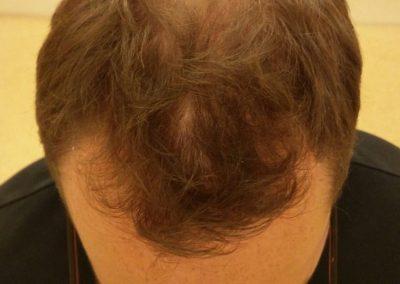 Voor mijn haartransplantatie