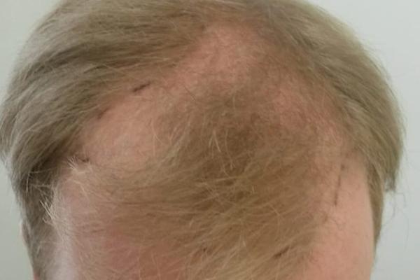 Voor een FUE haartransplantatie