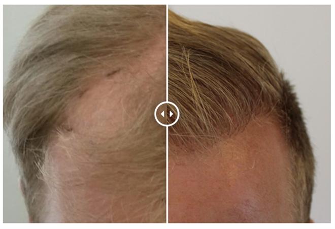 https://www.haarkliniekdekroon.nl/wp-content/uploads/2020/12/Haarimplantatie-bij-Haarkliniek-De-Kroon.png